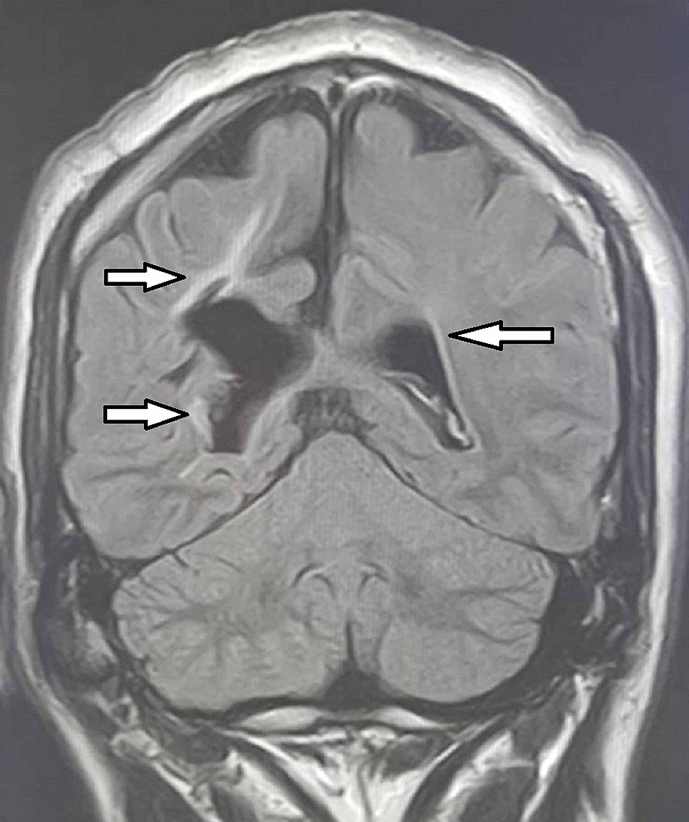 MRI-sagittal-section-showing-periventricular-hyperintensities-(Arrows)