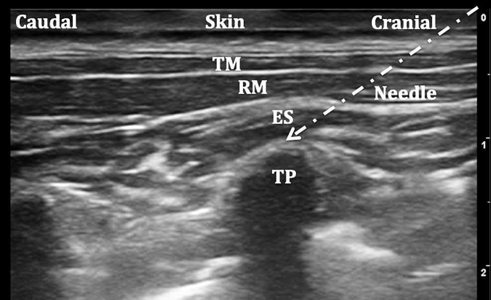 Ultrasound-image-of-the-classic-approach-to-erector-spinae-plane-block-(ESPB)