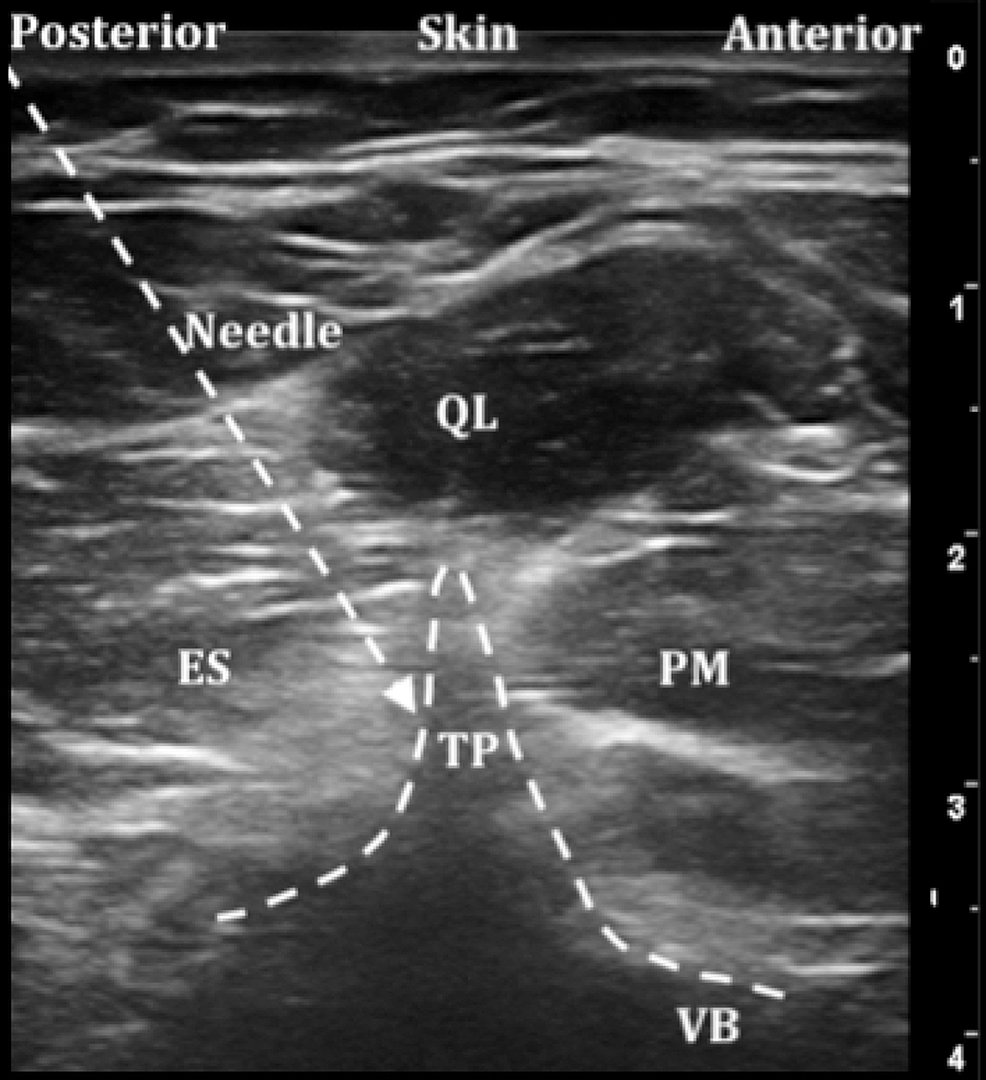 Ultrasound-image-of-the-Aksu-approach-to-erector-spinae-plane-block-(ESPB)-at-lumbar-levels