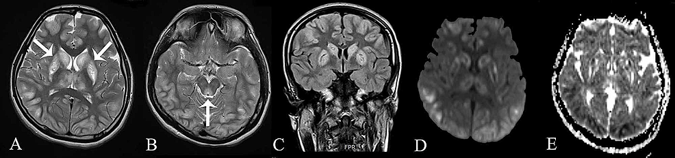 Magnetic-Resonance-Imaging