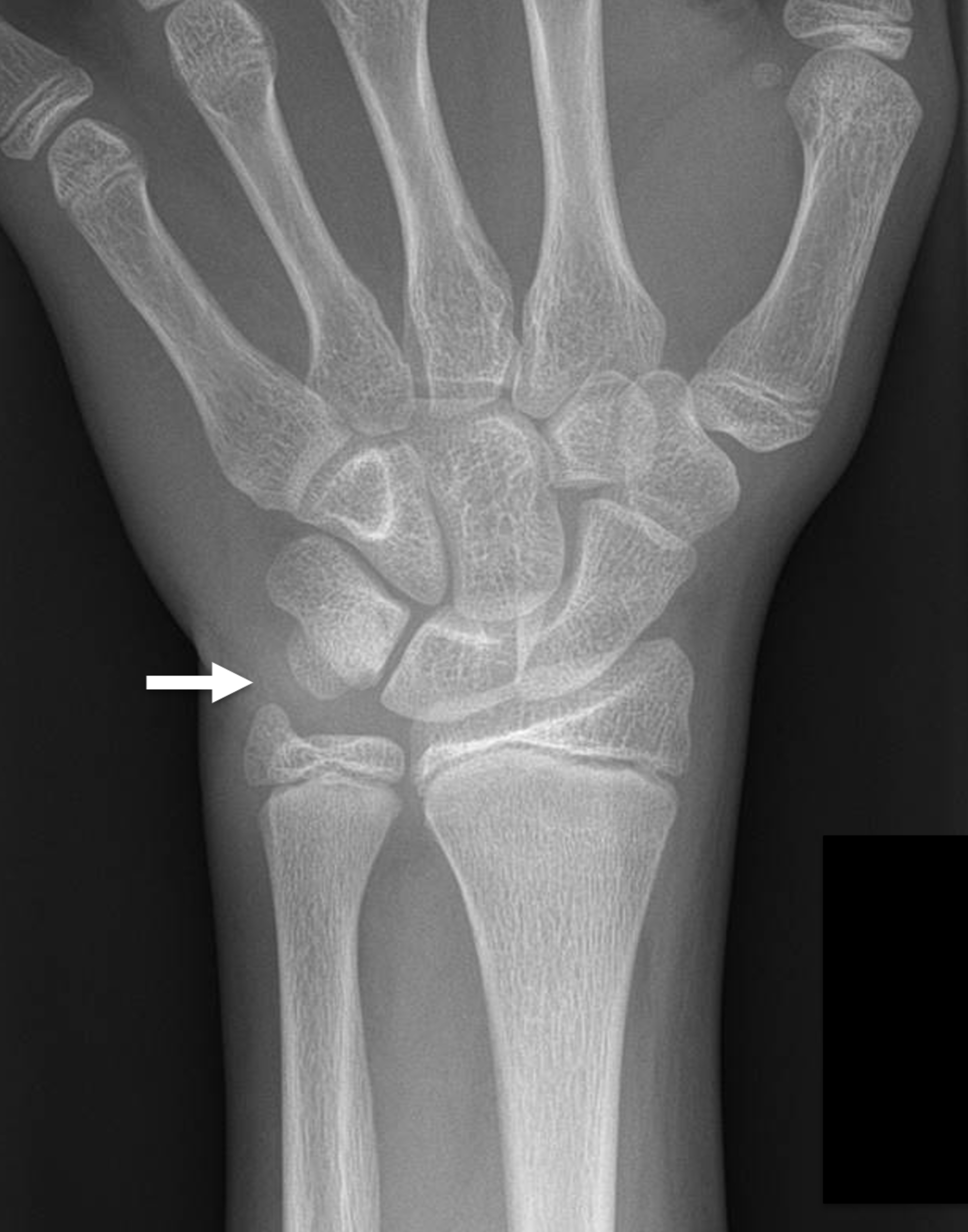 Cureus Radiographically Occult Symptomatic