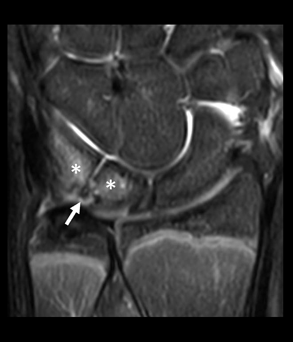 Coronal-T2-weighted-fat-suppressed-magnetic-resonance-(MR)-image-from-the-same-MR-scan-as-the-prior-figure