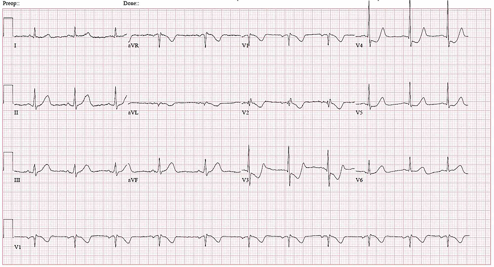 Electrocardiogram-showing-ST-depression-in-V3-and-V4-suggesting-a-non-ST-elevation-myocardial-infarction-(NSTEMI)
