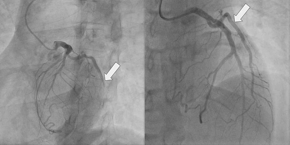 Complete-occlusion-of-the-first-obtuse-marginal-artery-(OM1)-before-percutaneous-coronary-intervention-(PCI)-(left)-and-after-PCI-(right)