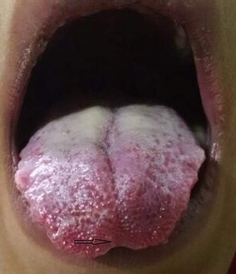 BIfid-tongue-(indicated-by-the-arrow)-on-examination-in-a-patient-with-marfanoid-features