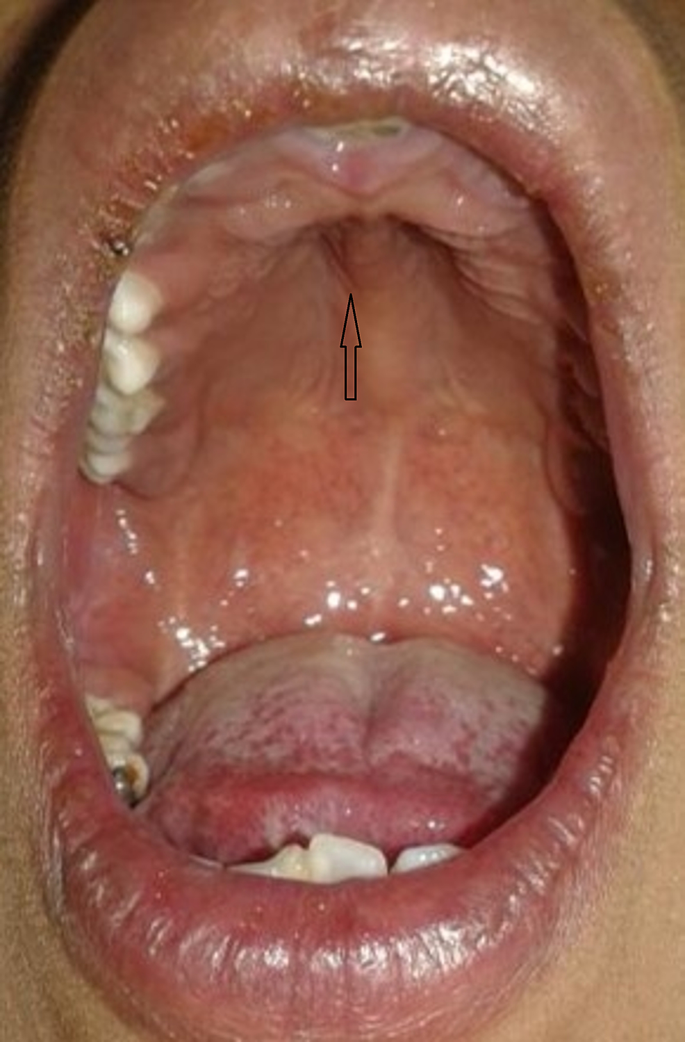 High-arched-palate-(indicated-by-an-arrow)