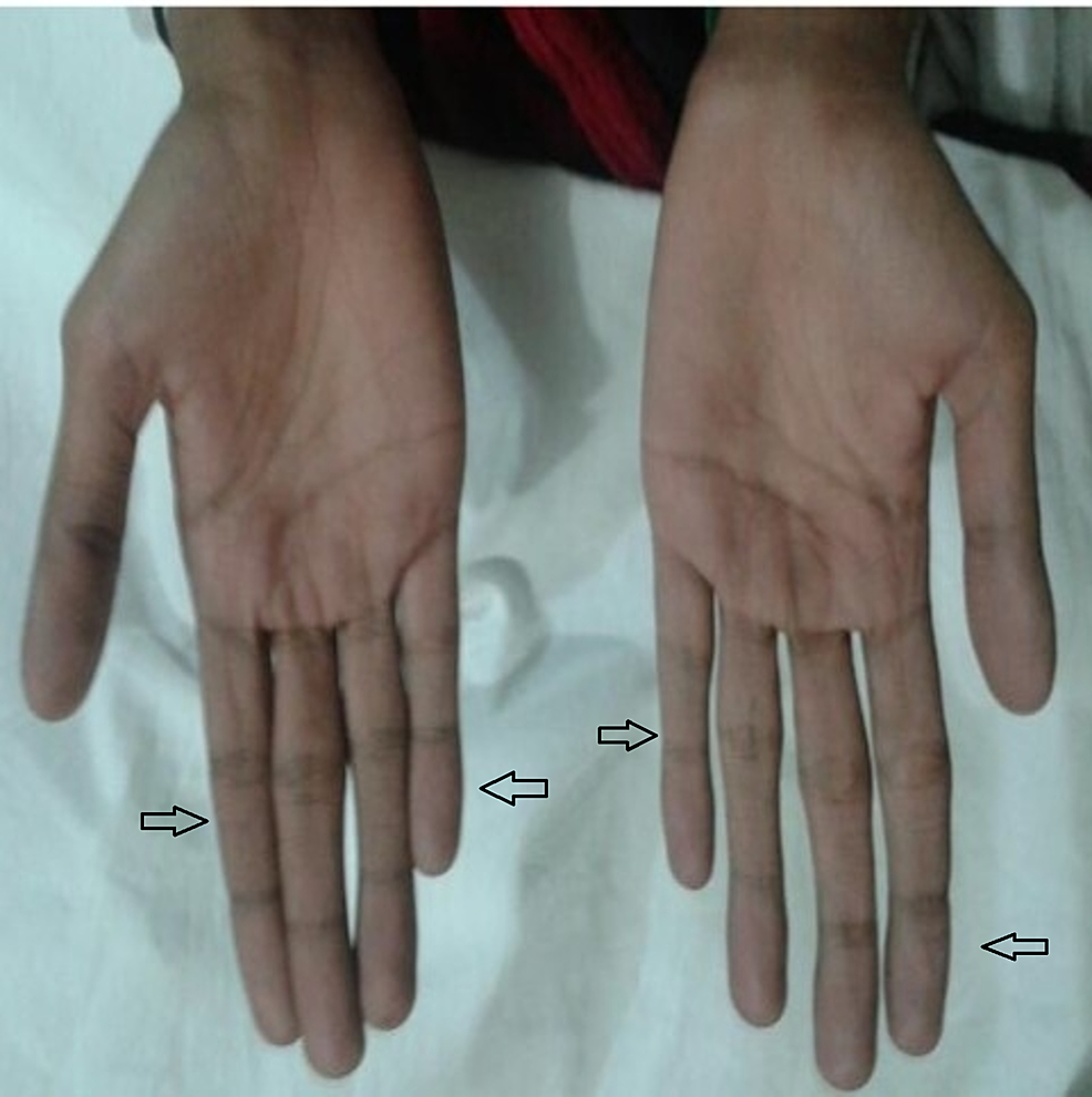 Thin,-slender-and-long-fingers-(indicated-by-the-arrows)-consistent-with-marfanoid-features