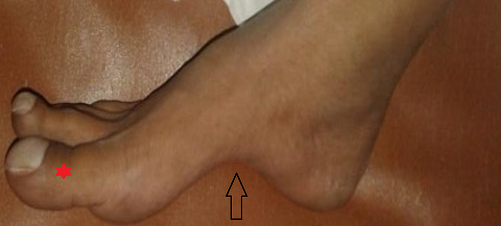Prominent-pes-cavus-(shown-with-arrow)-with-drum-stick-appearance-of-toes-(*)-consistent-with-cyanotic-heart-disease
