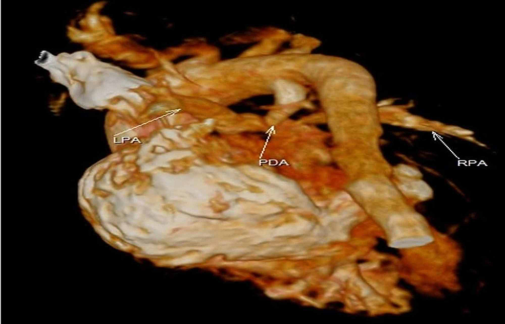 Cardiac-volume-computed-tomography-showing-anomalous-positioning-of-LPA-with-PDA-and-aortic-discordance