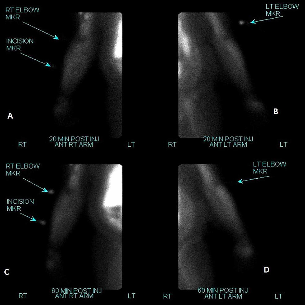 After-surgical-resection-of-the-right-forearm-mass,-a-repeat-Technetium-99m-Sestamibi-scan-demonstrated-no-focal-areas-of-uptake-to-suggest-residual-parathyroid-tissue-after-resection-(A-&-C).-Left-forearm-is-shown-for-comparison-(B-&-D).
