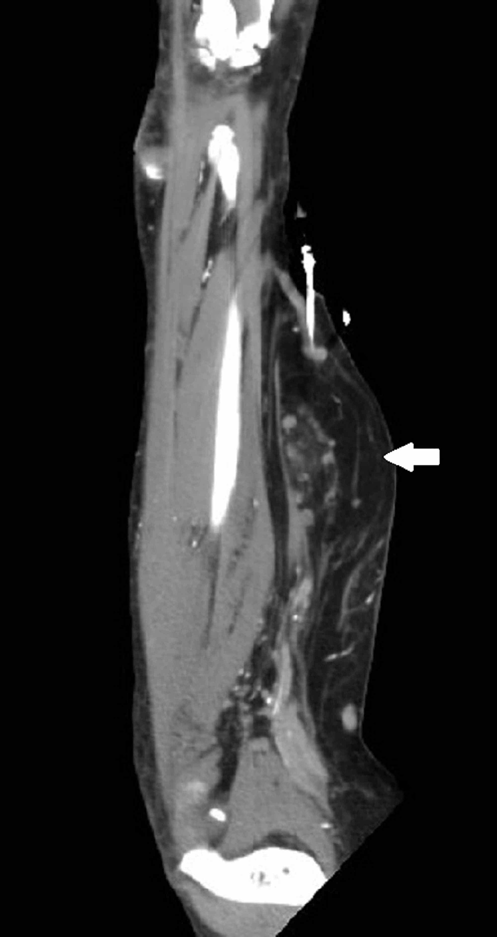 Coronal-reformatted-CT-also-showing-a-right-forearm-mass-(thick-white-arrow)-concerning-for-atypical-lipomatous-tumor-or-liposarcoma.