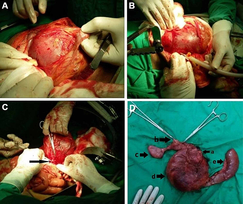 Peroperative-pictures-showing-the-giant-choledochal-cyst-and-final-resected-specimen