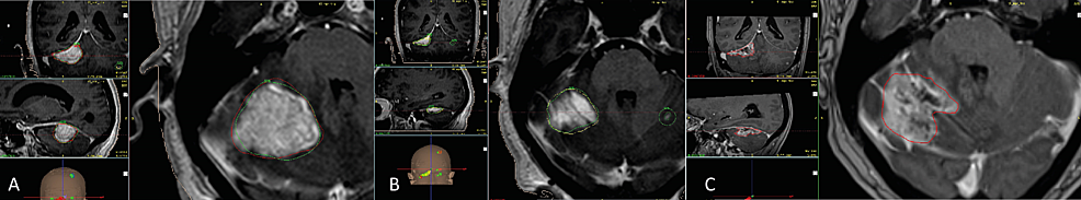 Two-session-in-a-large-posterior-fossa-metastases-in-a-multiple-lesion-case-