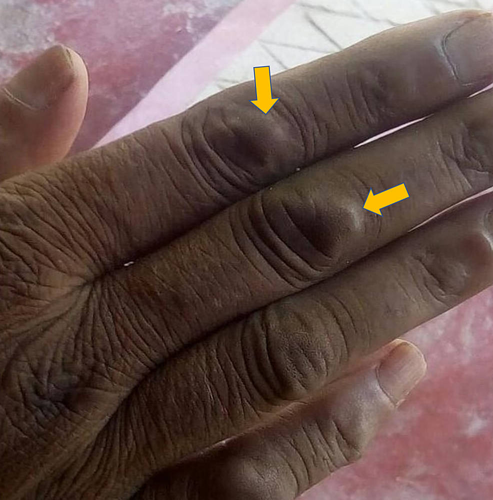 Papulonodular-lesion-over-dorsum-of-the-right-hand