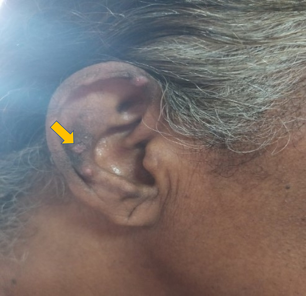 Papulonodular-lesion-of-the-right-pinnae