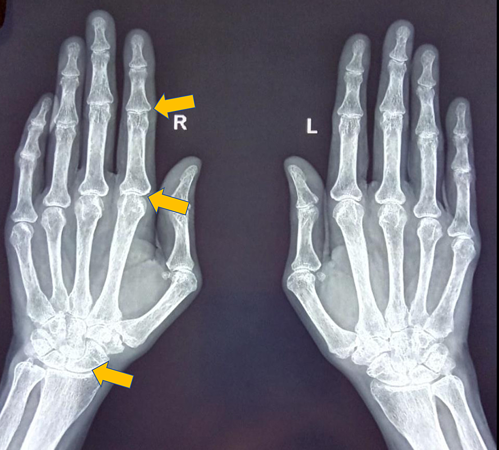 X-ray-of-both-hands-revealed-subchondral-erosion-of-the-wrist,-PIP,-and-MCP-joints-along-with-narrowing-of-these-joint-spaces-with-juxtaarticular-osteopenia