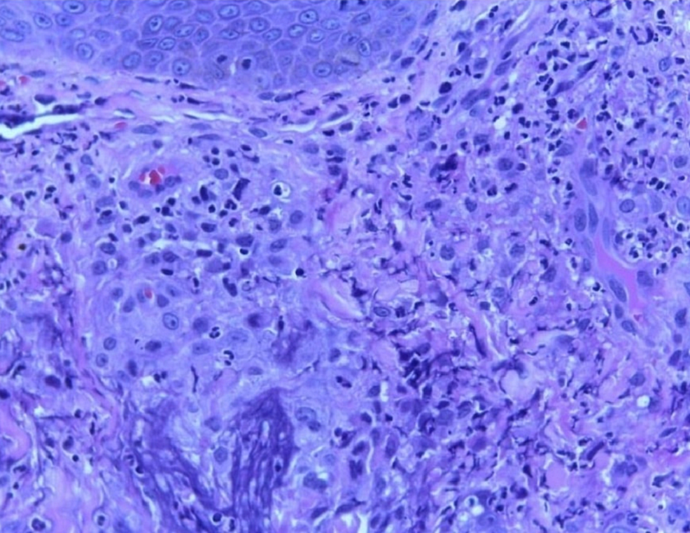 Sheets-of-histiocytes-in-the-dermis-with-occasional-multinucleated-giant-cell-(hematoxylin-and-eosin-(H&E)-stain-with-10x-magnification)