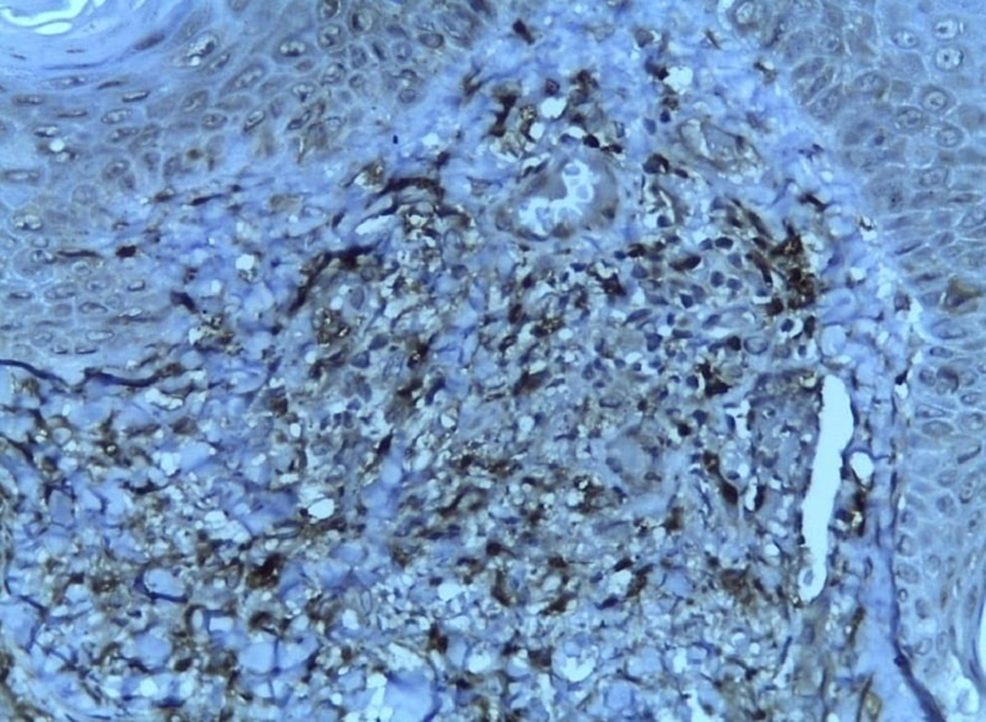 CD163-diffuse-positive-(immunohistochemistry-with-10x-magnification)