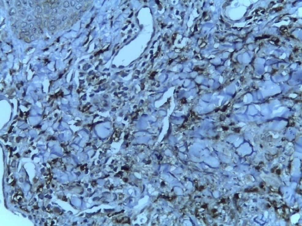 Positive-for-CD68-(immunohistochemistry-with-20x-magnification)