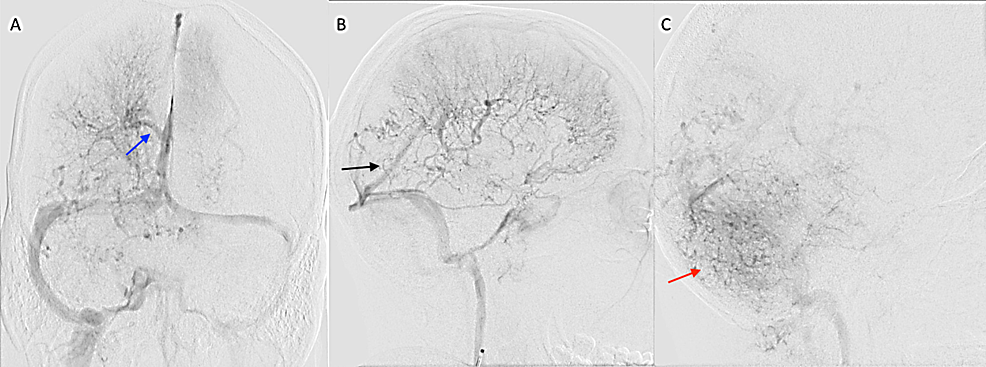 Digital-subtraction-angiography-of-the-brain-venous-phase-showing-venous-congestion-in-the-bilateral-cerebral-and-cerebellar-hemisphere.