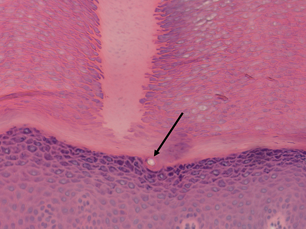 Spine-arising-from-the-epidermis-without-epidermal-invagination,-and-no-involvement-of-sweat-duct.