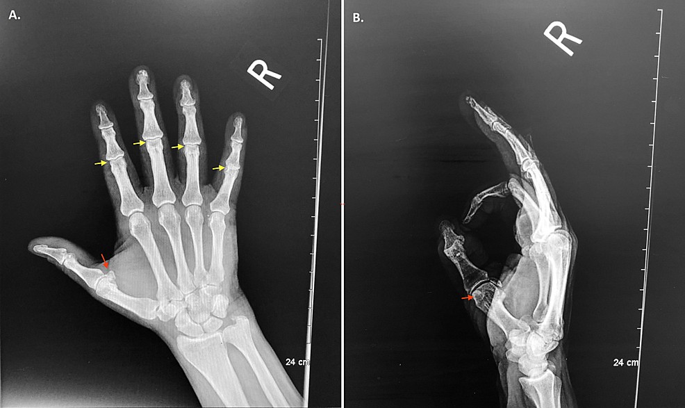 Cureus Reflex Sympathetic Dystrophy Of The Right Hand Following An Acute Traumatic Injury Download for free in png, svg, pdf formats 👆. cureus reflex sympathetic dystrophy