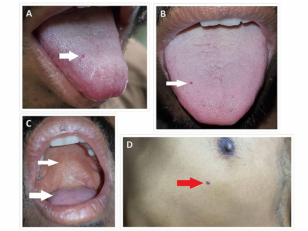 Telangiectasias-(white-arrows)-are-seen-on-the-tongue-(A,-B,-C)-and-palate-(C)-of-the-patient.-A-cherry-angioma-(red-arrow)-is-seen-below-the-right-nipple-of-the-patient-(D).-
