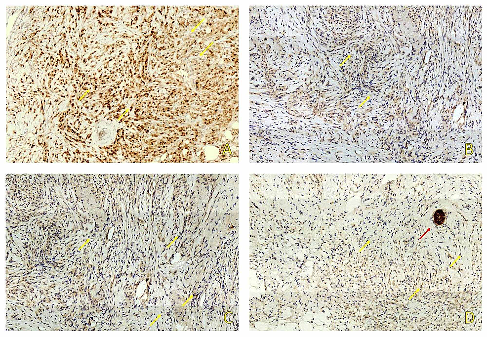 Immunohistochemical-study-showed-positive-staining-for-ER-(A)-and-negative-for-PR-(B)-and-HER-2/neu-(C).-E-Cadherin-(D)-was-negative-in-tumor-cells-(yellow-arrows)-and-positive-in-normal-ductal-structures-(red-arrow).