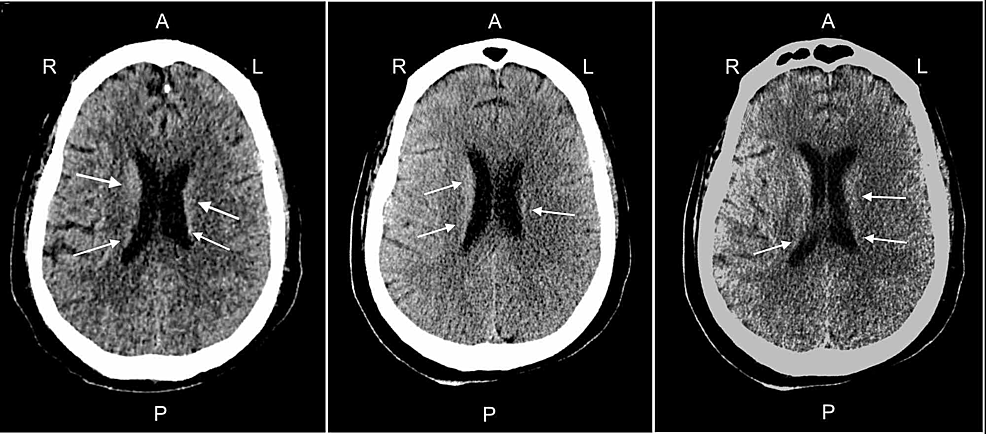 Head-CT-without-contrast-from-different-angles.-Blood-pooling-in-the-anterior-aspect-of-the-lateral-ventricles-into-the-occipital-horns-bilaterally.