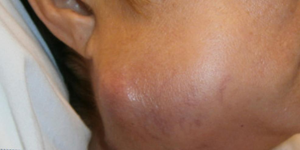 Enlarging-right-submandibular-neck-mass.