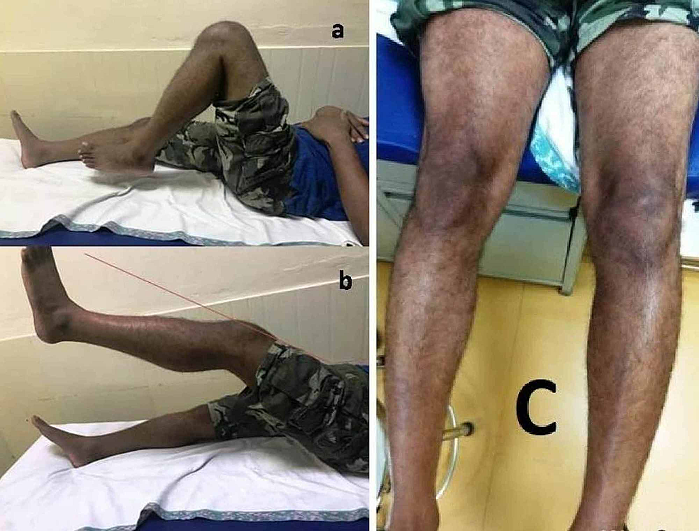 Clinical-picture-showing-a)-range-of-motion,-b)-extensor-lag,-and-c)-muscle-wasting.