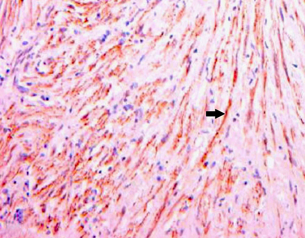 Immunohistochemical-staining-for-smooth-muscle-actin-demonstrating-uniform-positive-staining-by-tumour-cells-as-indicated-by-the-arrow-(40x-magnification)