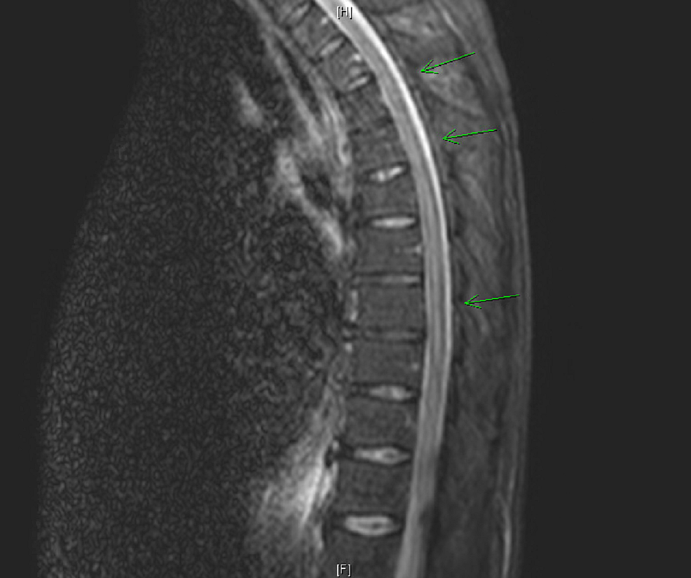 MRI-demonstrating-an-abnormally-increased-intensity-of-the-thoracic-cord-(green-arrows)