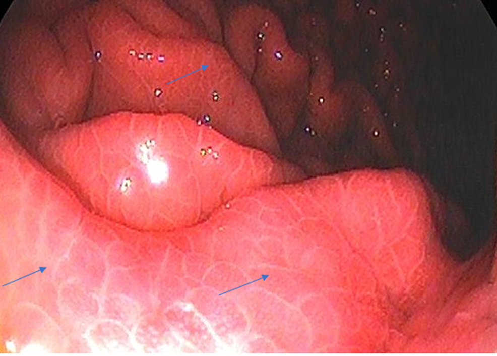 Mild-PHG-showing-reticular-cobblestone-pattern-of-gastric-mucosa-(blue-arrows)