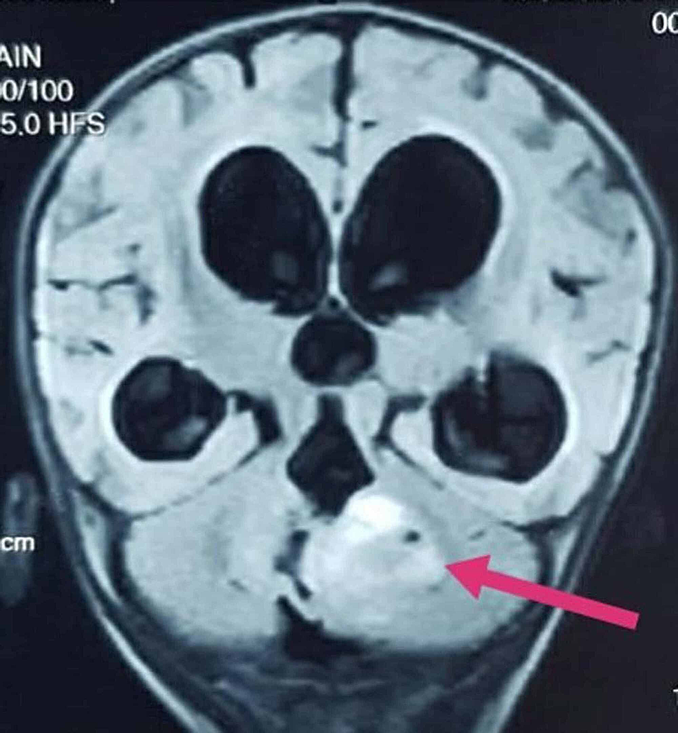 A-mass-in-the-posterior-fossa-compressing-fourth-ventricle-with-consequent-obstructive-hydrocephalus