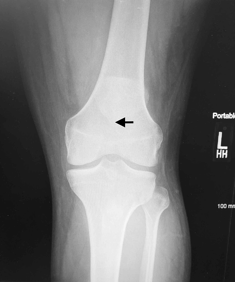 Anterior-posterior-view-radiograph-of-the-left-knee