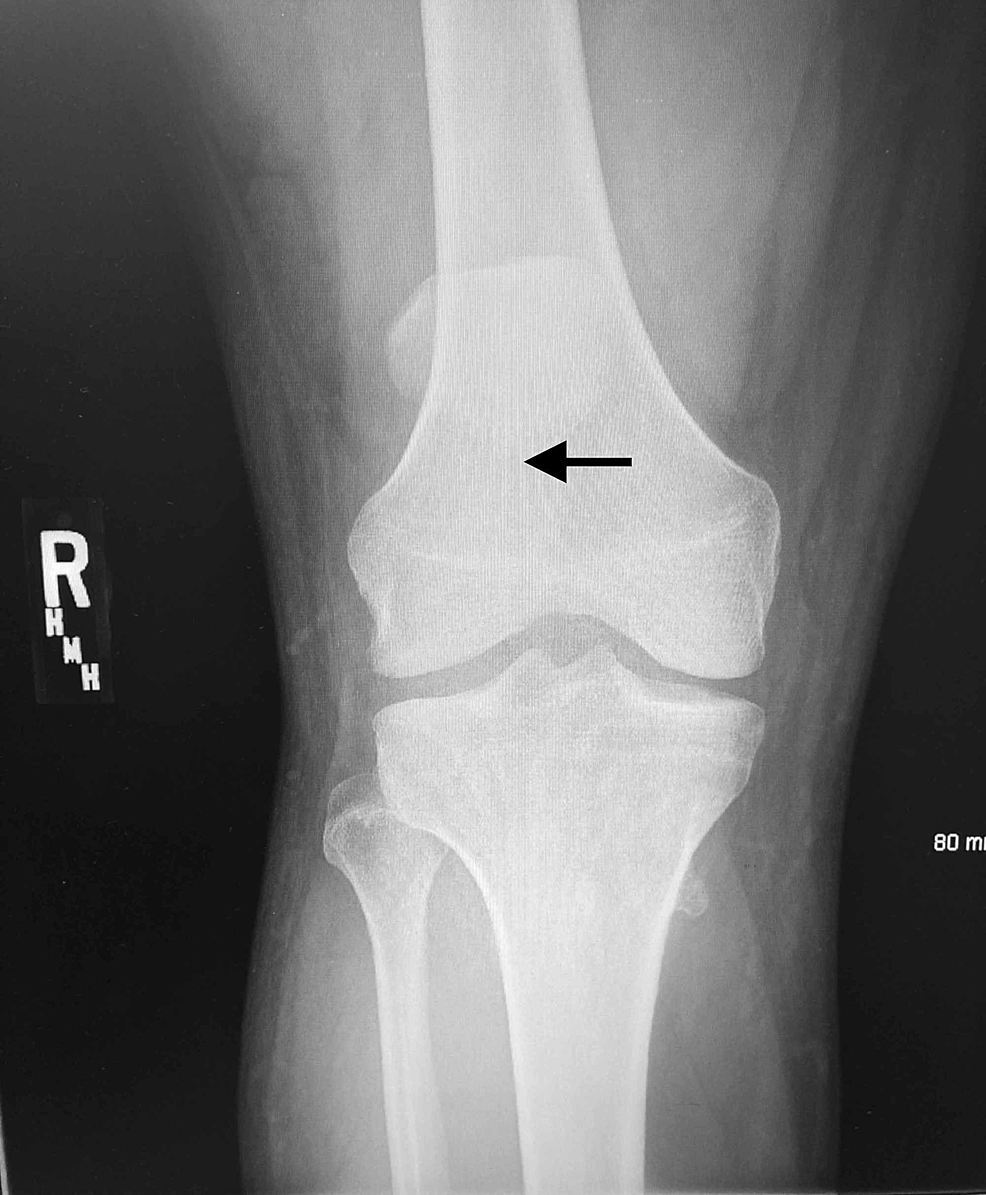 Anterior-posterior-view-radiograph-of-the-right-knee