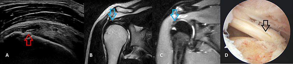 A-36-year-old-male-patient-with-a-bursal-partial-thickness-supraspinatus-tear