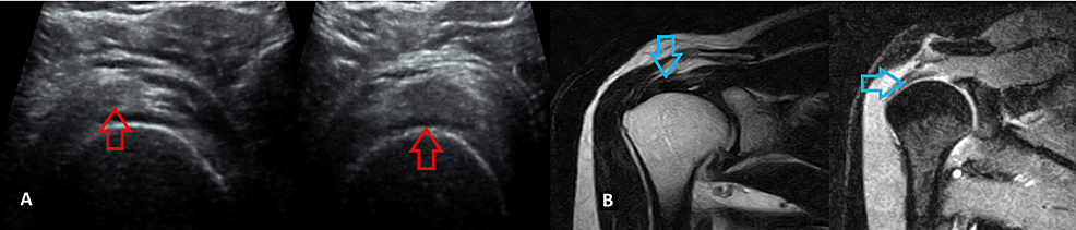 A-40-year-old-male-patient-with-supraspinatus-tendinosis