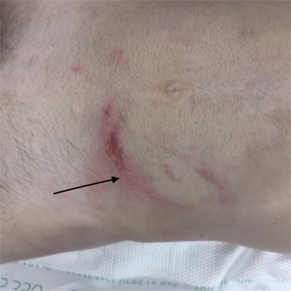 Abdominal-wall-bruising