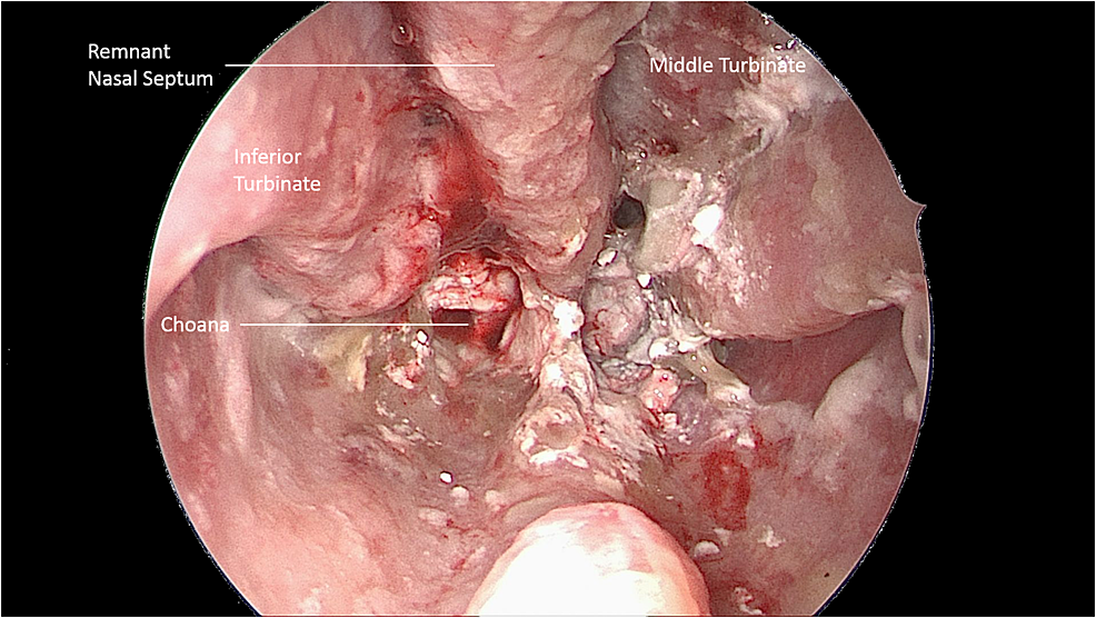 -Endoscopic-Evidence-of-Damage