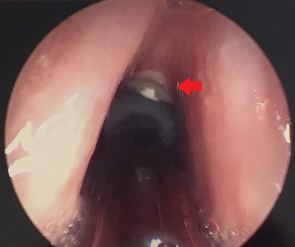 View-on-Direct-Laryngoscopy