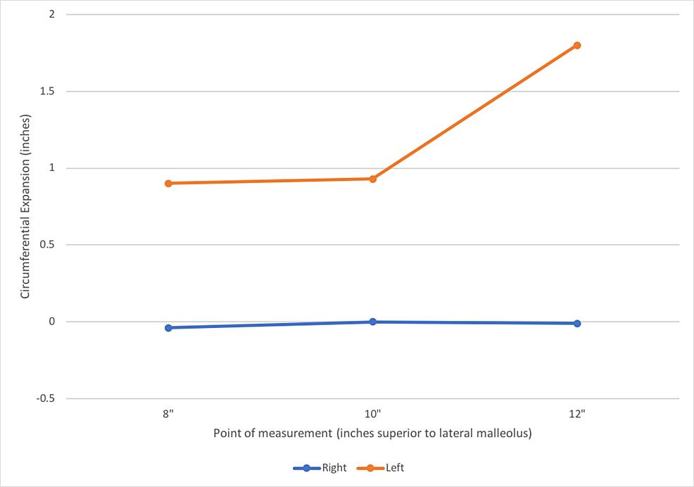 Average-post-skating-lower-leg-circumferential-expansion