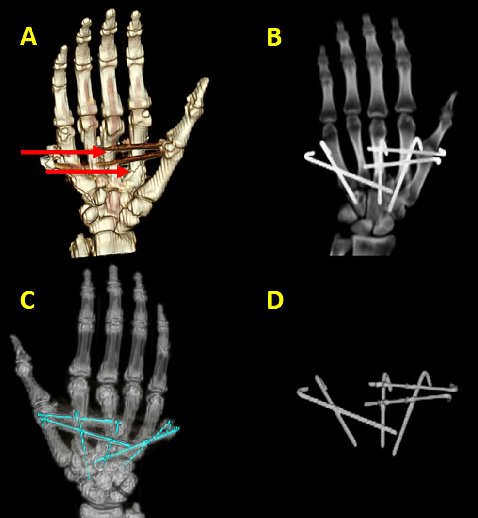 Metacarpal-fracture-hardware-positioning-in-three-dimensional-volume-rendering-(3DVR).