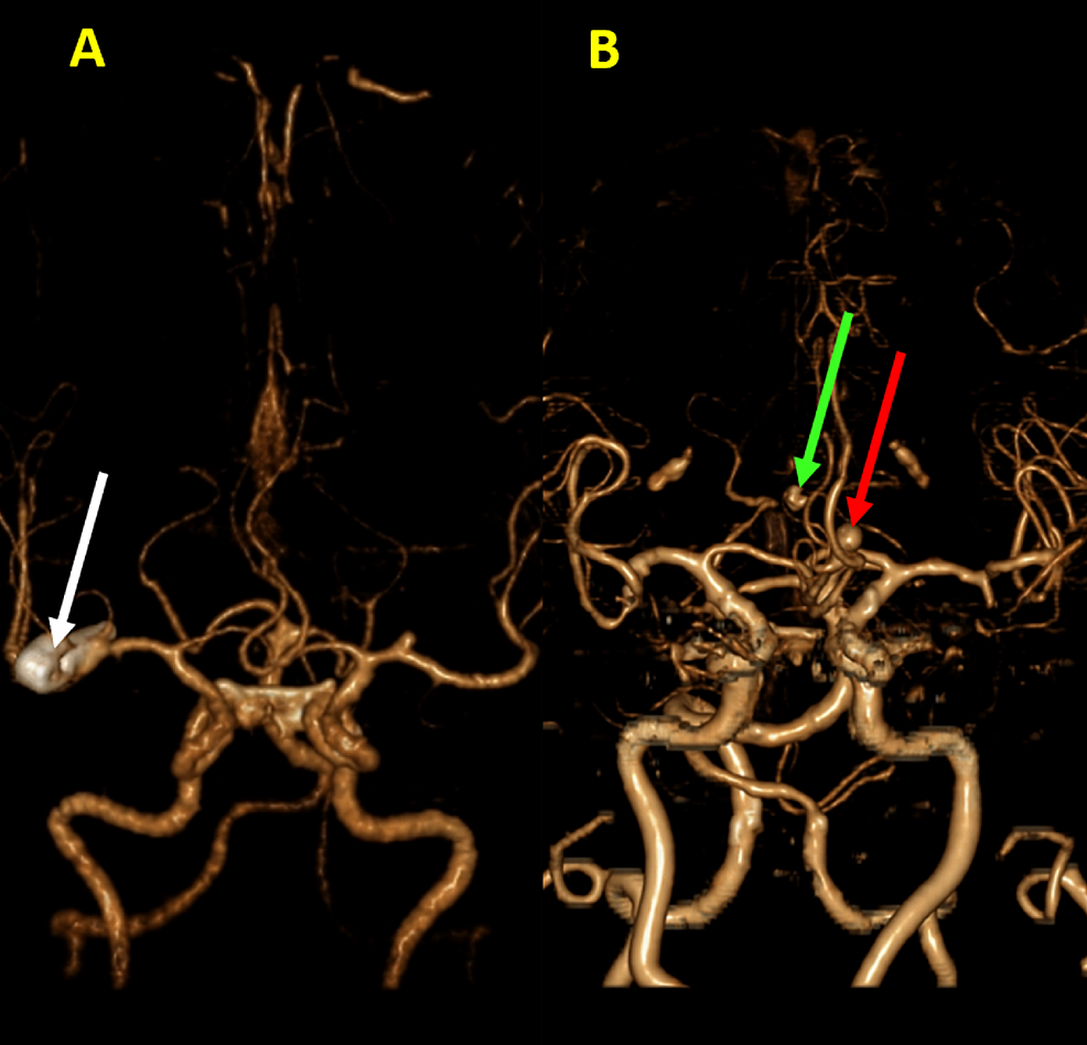 Intracranial-aneurysms-in-3hree-dimensional-volume-rendering-(3DVR).