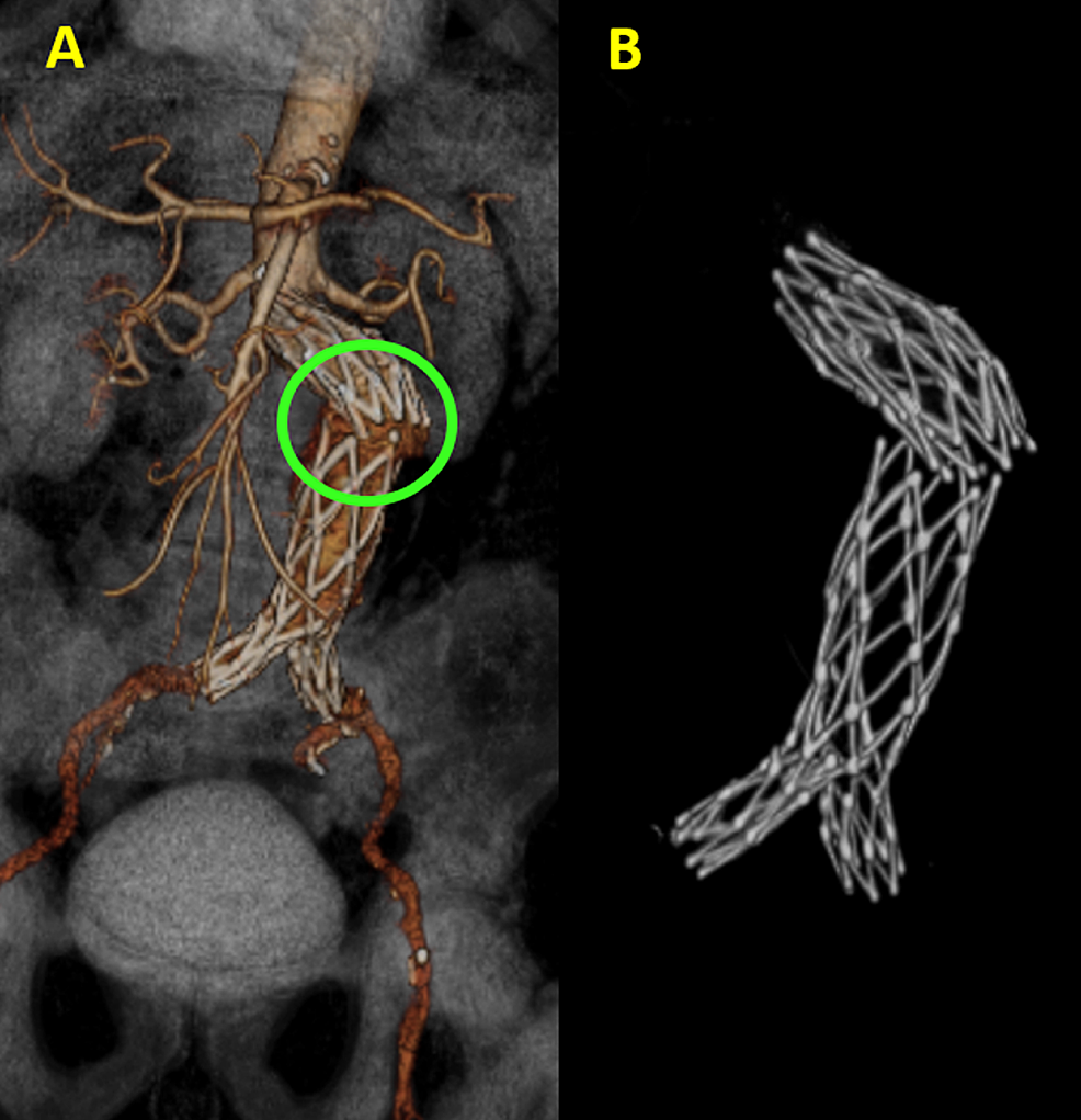 Aortic-stent-fracture-in-three-dimensional-volume-rendering-(3DVR).