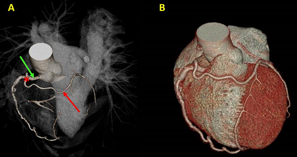 Coronary-arteries-in-three-dimensional-volume-rendering-(3DVR).