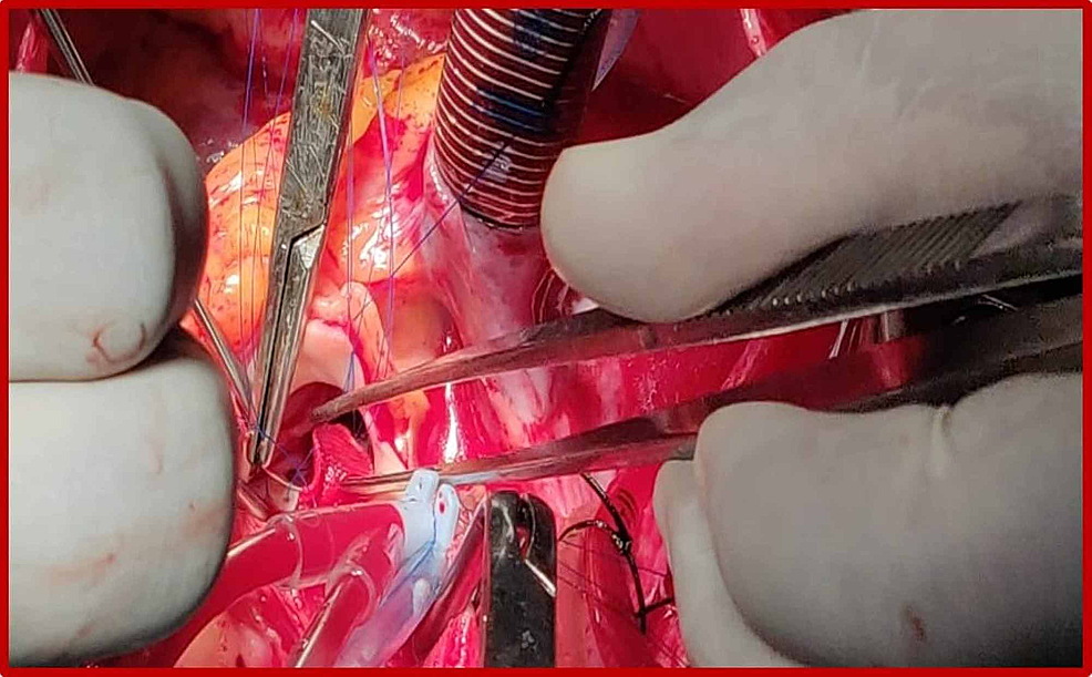 Intraoperative-photography-demonstrating-the-aneurysm-(arrow)-arising-from-the-left-sinus-of-Valsalva.