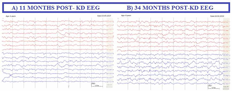 Post-ketogenic-diet-EEG.