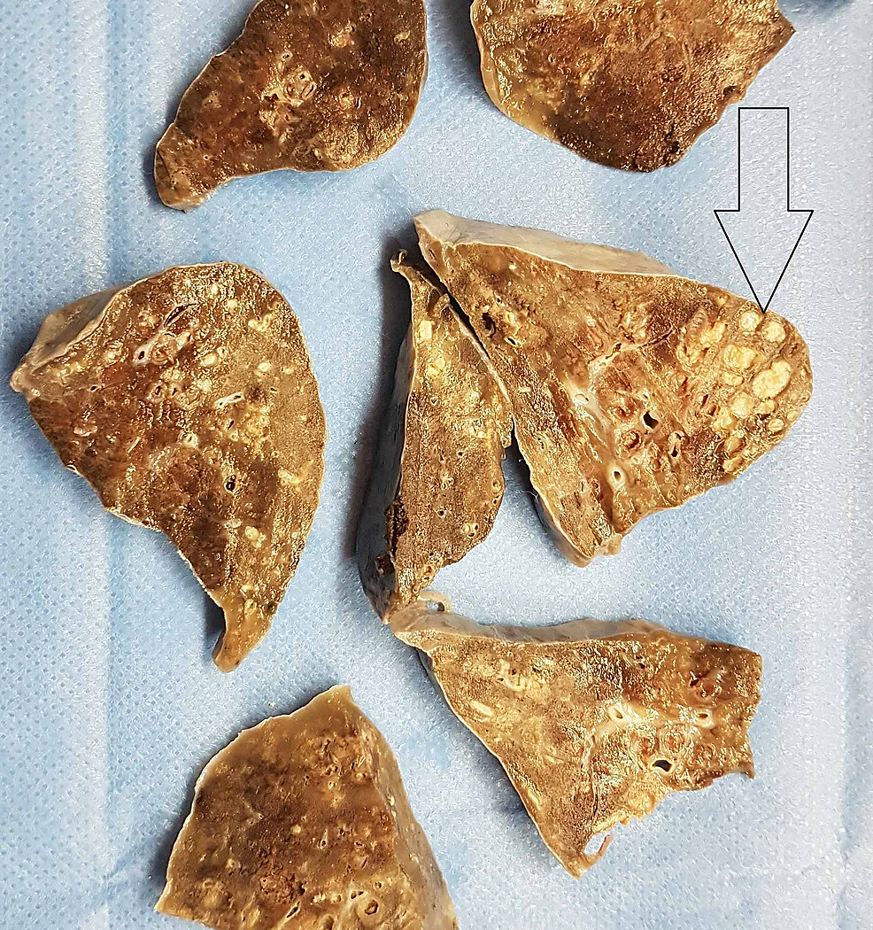 Gross-view-of-the-lung-after-fixation,-with-well-defined-cystic-changes-(arrow).